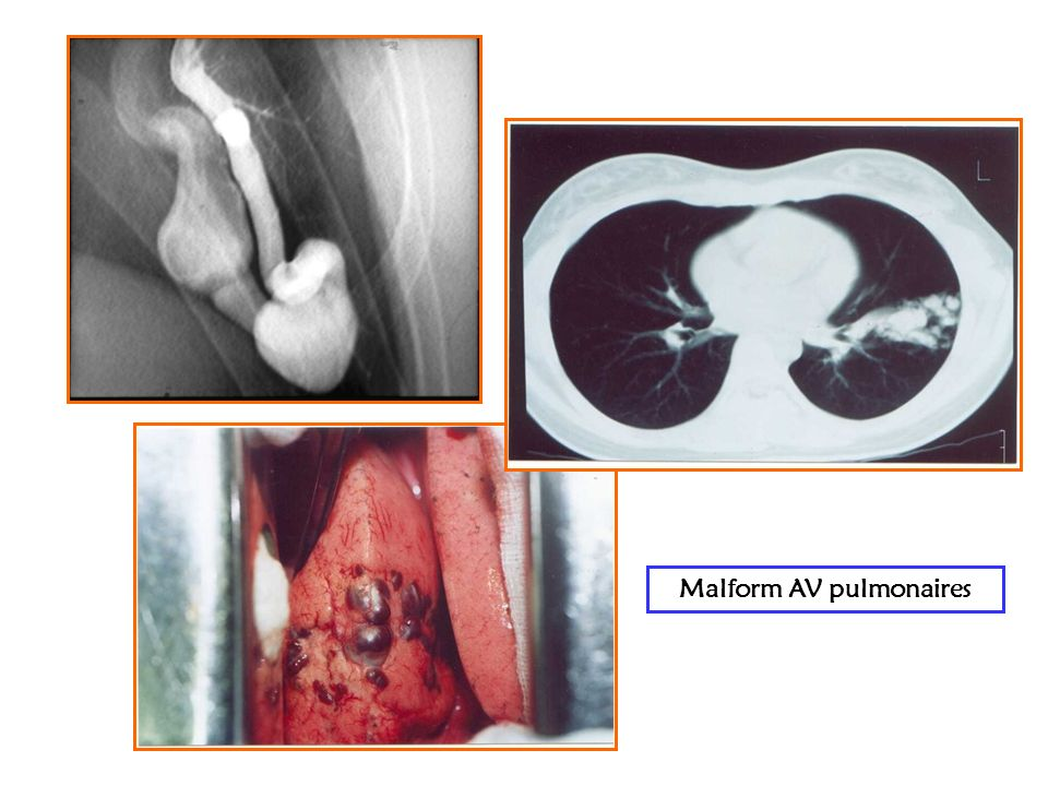 Malform AV pulmonaires
