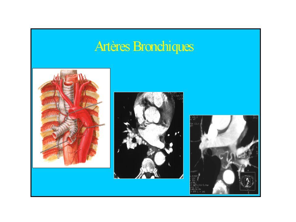 Hémoptysie – Mécanismes (2) Rupture dun gros vaisseau –solution continuité de la paroi vasculaire rupture anévrysme artério-veineux pulmonaire rupture anévrysme Ao thoracique accidents des corps étrangers Saignement provenant de la circulation pulmonaire – ALVEOLAIRE (10%) –sang alvéoles extériorisation lésion inflamm / immunol barrière alv-capill.