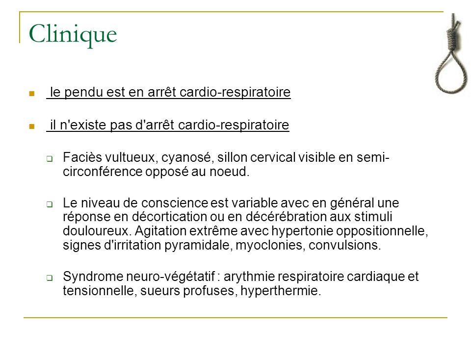 Clinique le pendu est en arrêt cardio-respiratoire il n existe pas d arrêt cardio-respiratoire Faciès vultueux, cyanosé, sillon cervical visible en semi- circonférence opposé au noeud.