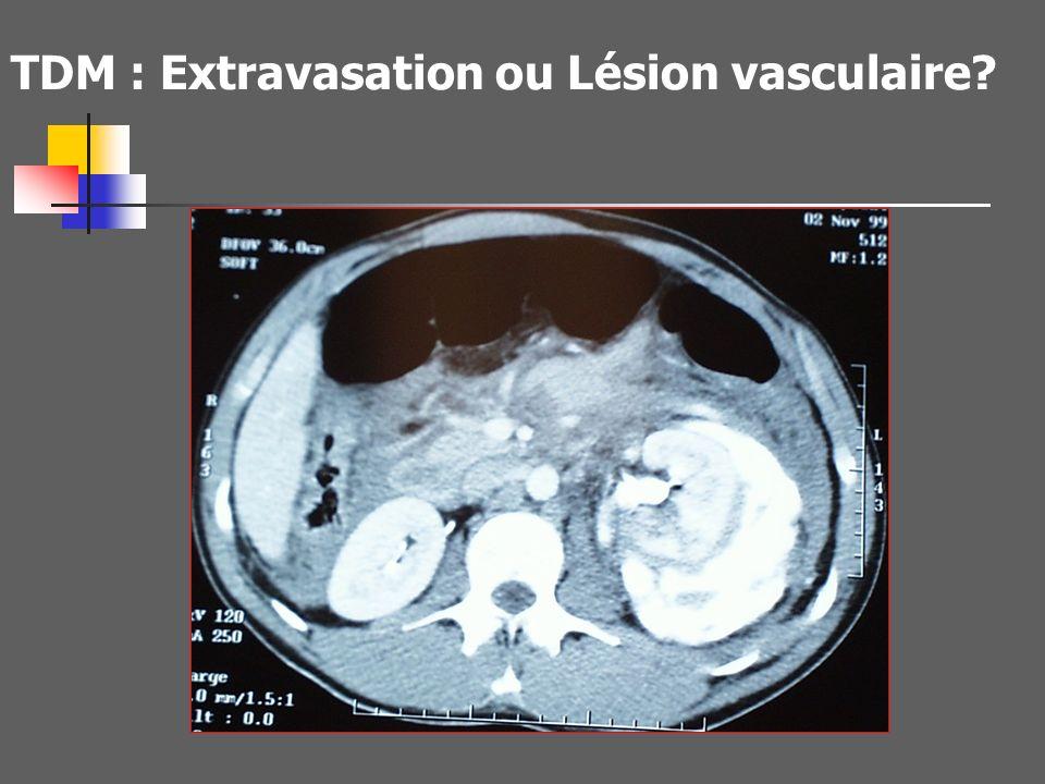 Reconstructions Frontales : Vascularisation et segments ischémiés