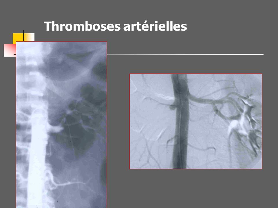 Place de lartériographie * Bilan lésionnel, rarement * Rein muet en TDM Si chirurgie programmée En vue d un geste radiologique * Malade Instable ou «
