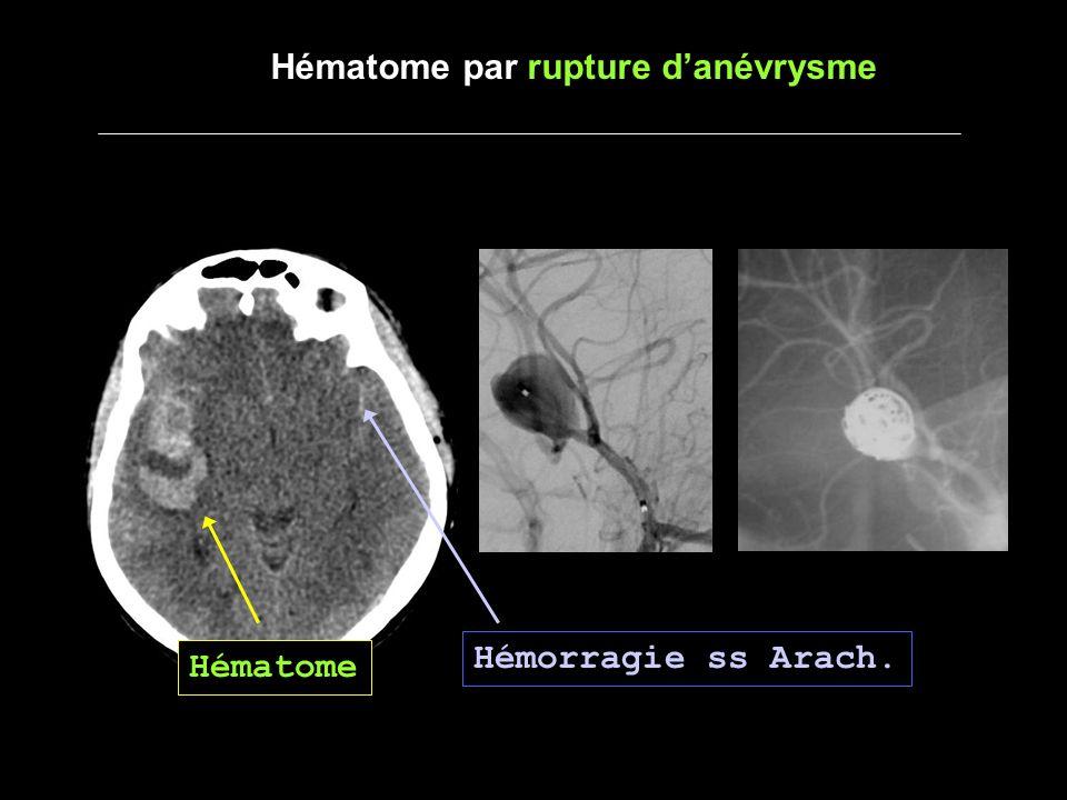 Hématome par rupture danévrysme Hématome Hémorragie ss Arach.
