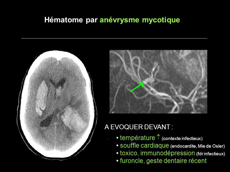 Hématome par anévrysme mycotique A EVOQUER DEVANT : température (contexte infectieux) souffle cardiaque (endocardite, Mie de Osler) toxico, immunodépression (fdr infectieux) furoncle, geste dentaire récent