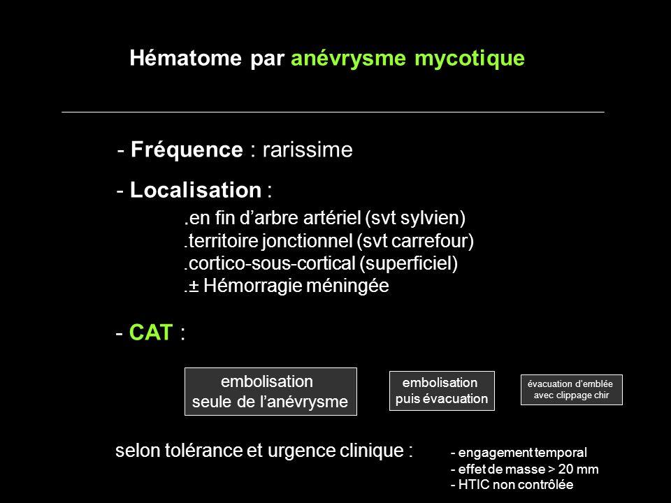 - Fréquence : rarissime - Localisation :. en fin darbre artériel (svt sylvien).territoire jonctionnel (svt carrefour).cortico-sous-cortical (superfici