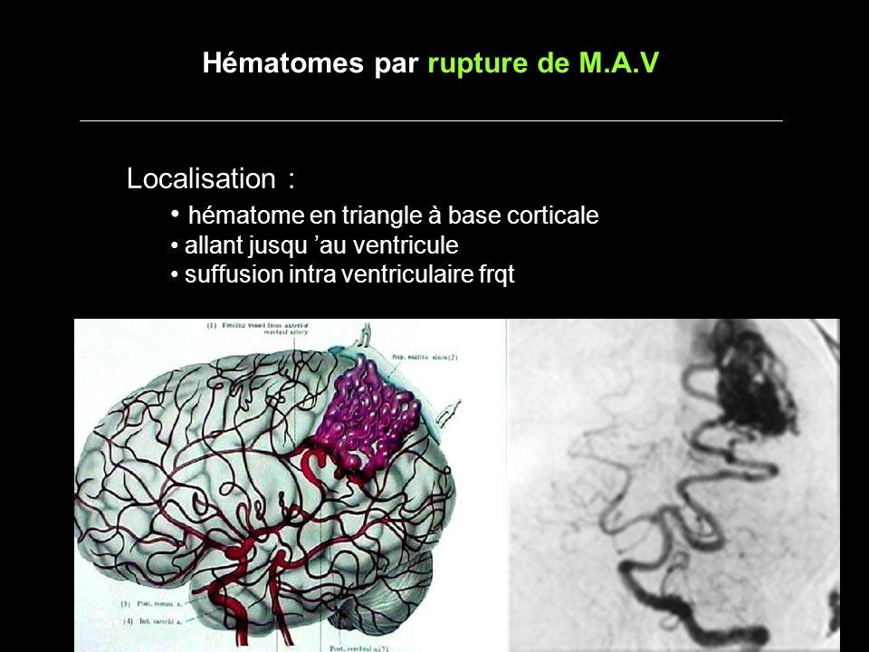 Localisation : hématome en triangle à base corticale allant jusqu au ventricule suffusion intra ventriculaire frqt Hématomes par rupture de M.A.V