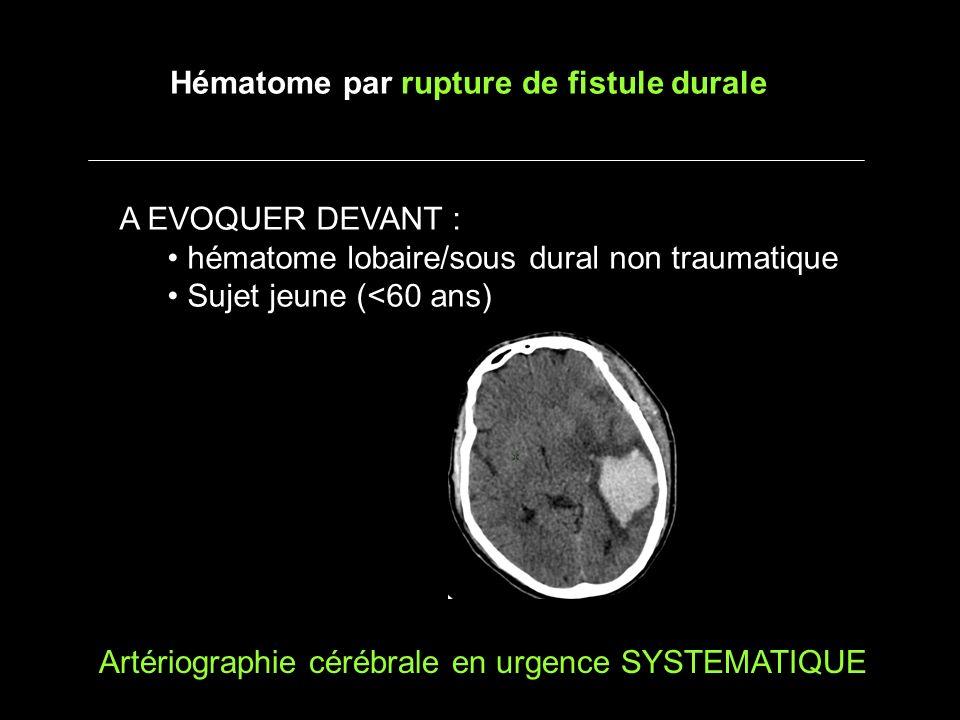 A EVOQUER DEVANT : hématome lobaire/sous dural non traumatique Sujet jeune (<60 ans) Hématome par rupture de fistule durale Artériographie cérébrale en urgence SYSTEMATIQUE
