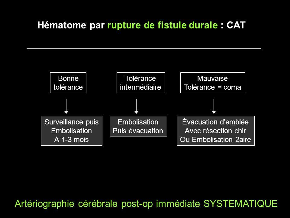 Hématome par rupture de fistule durale : CAT Artériographie cérébrale post-op immédiate SYSTEMATIQUE Bonne tolérance Tolérance intermédiaire Mauvaise