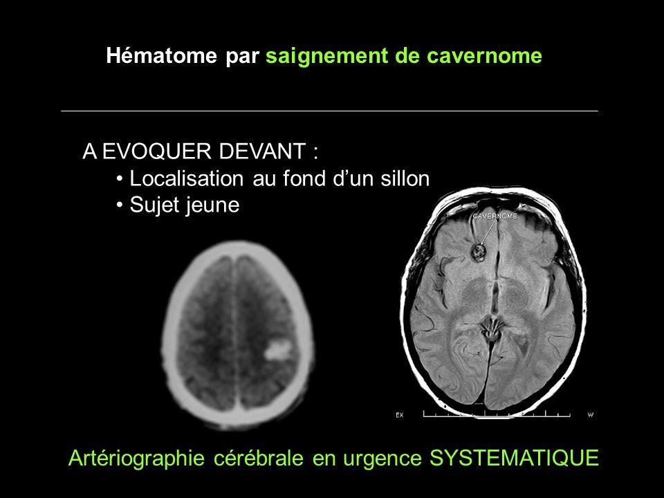 A EVOQUER DEVANT : Localisation au fond dun sillon Sujet jeune Hématome par saignement de cavernome Artériographie cérébrale en urgence SYSTEMATIQUE