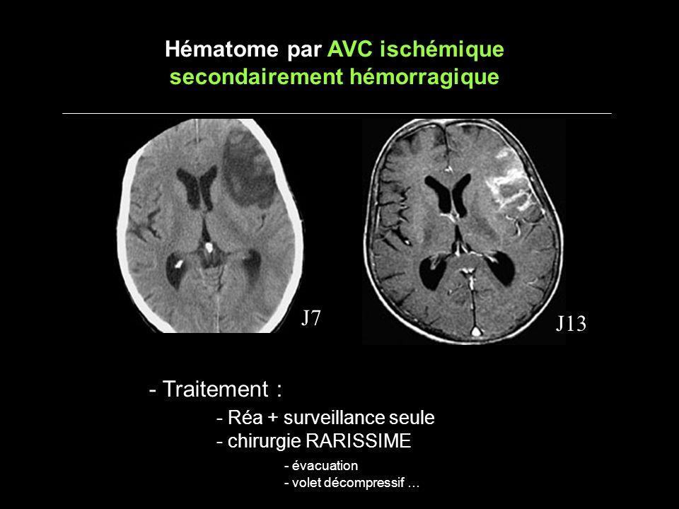Hématome par AVC ischémique secondairement hémorragique J7 J13 - Traitement : - Réa + surveillance seule - chirurgie RARISSIME - évacuation - volet dé