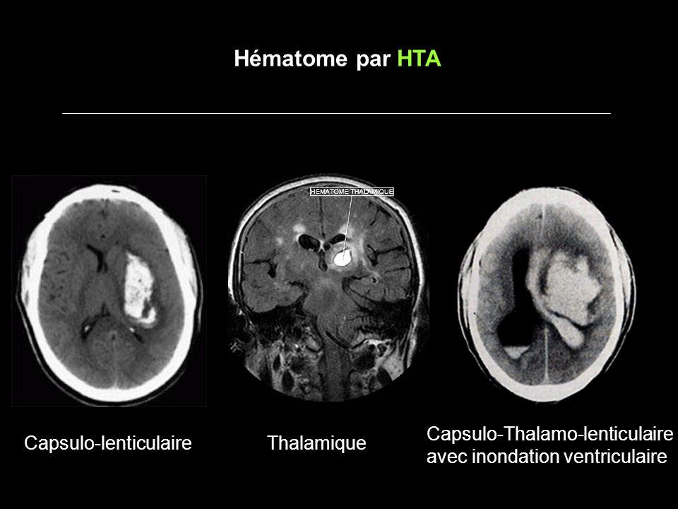 Hématome par saignement dune tumeur TUMEURS PRIMITIVES -Glioblastome -Hémangioblastome (cervelet) -Papillome des plexus choroïdes (enfant) METASTASES -Mélanome -Rein