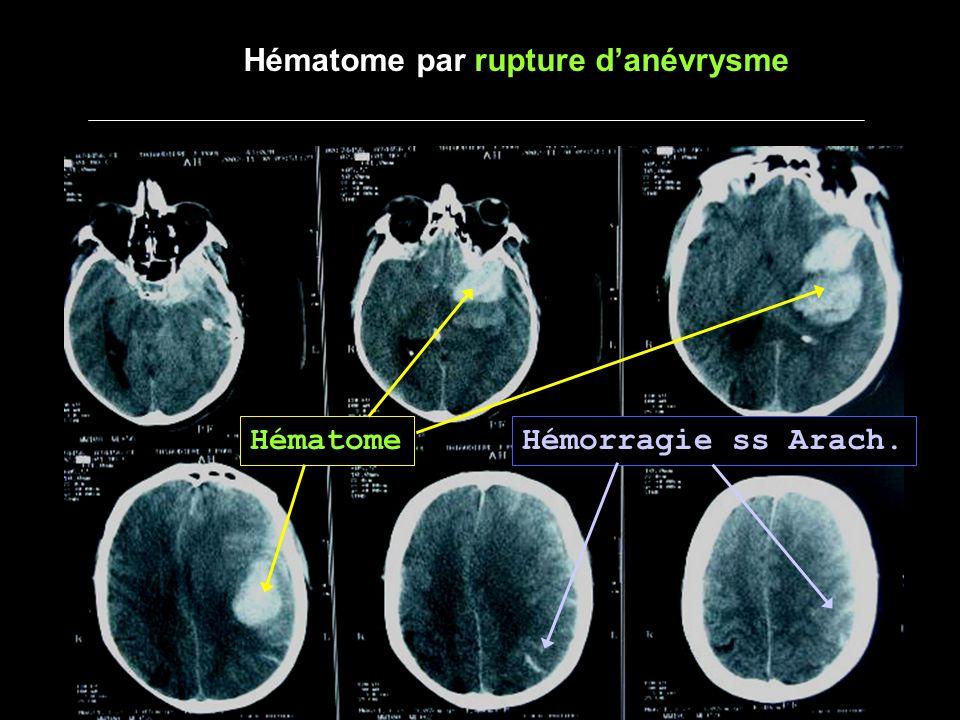 - Hématome lobaire - Au contact de larbre artériel (Anévrisme) - Proche dun sinus (thrombophlébite) - du cortex jusquau ventricule (MAV) - hémorragie sous arachnoïdienne (Anevrisme) - hémorragie intra-ventriculaire (MAV) - plusieurs hématomes (amylose, mycotique) - Sujet jeune (<60 ans) NE PAS HESITER à REALISER une ARTERIOGRAPHIE SI