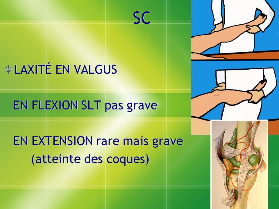 SC LAXITÉ EN VALGUS EN FLEXION SLT pas grave EN EXTENSION rare mais grave (atteinte des coques) LAXITÉ EN VALGUS EN FLEXION SLT pas grave EN EXTENSION