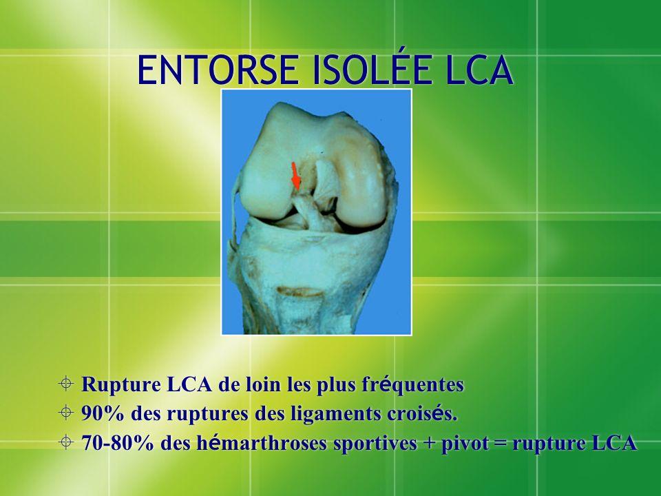 ENTORSE ISOLÉE LCA Rupture LCA de loin les plus fr é quentes 90% des ruptures des ligaments crois é s. 70-80% des h é marthroses sportives + pivot = r