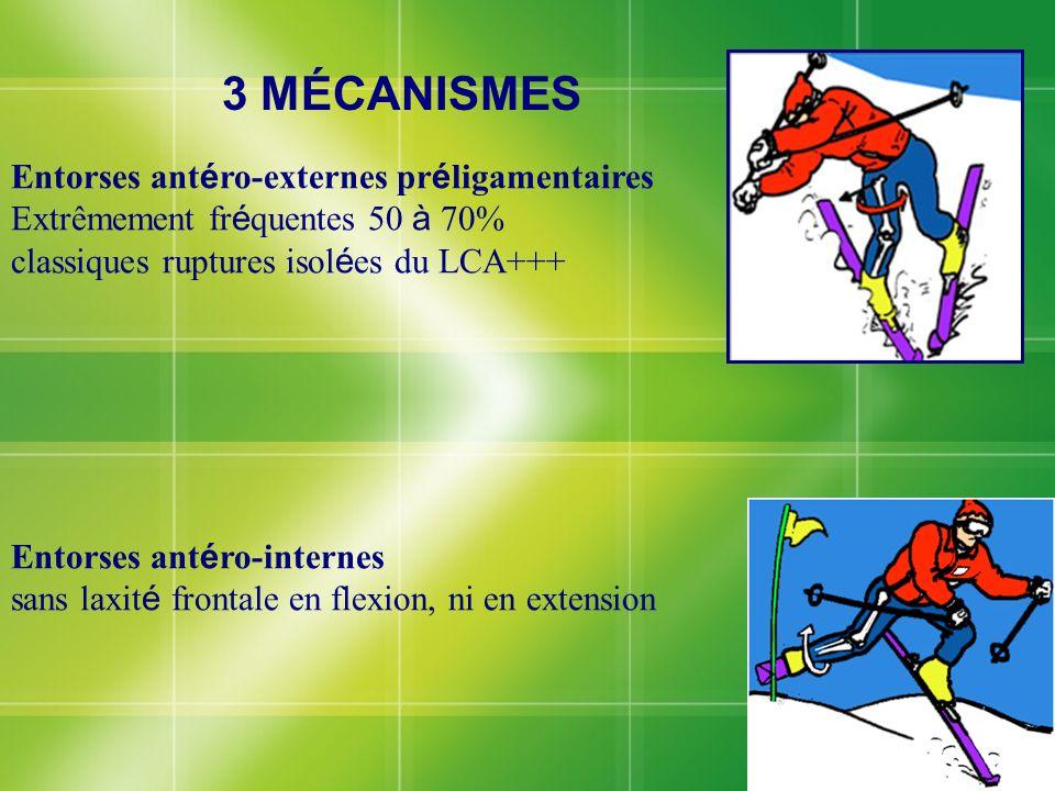 Entorses ant é ro-externes pr é ligamentaires Extrêmement fr é quentes 50 à 70% classiques ruptures isol é es du LCA+++ Entorses ant é ro-internes san