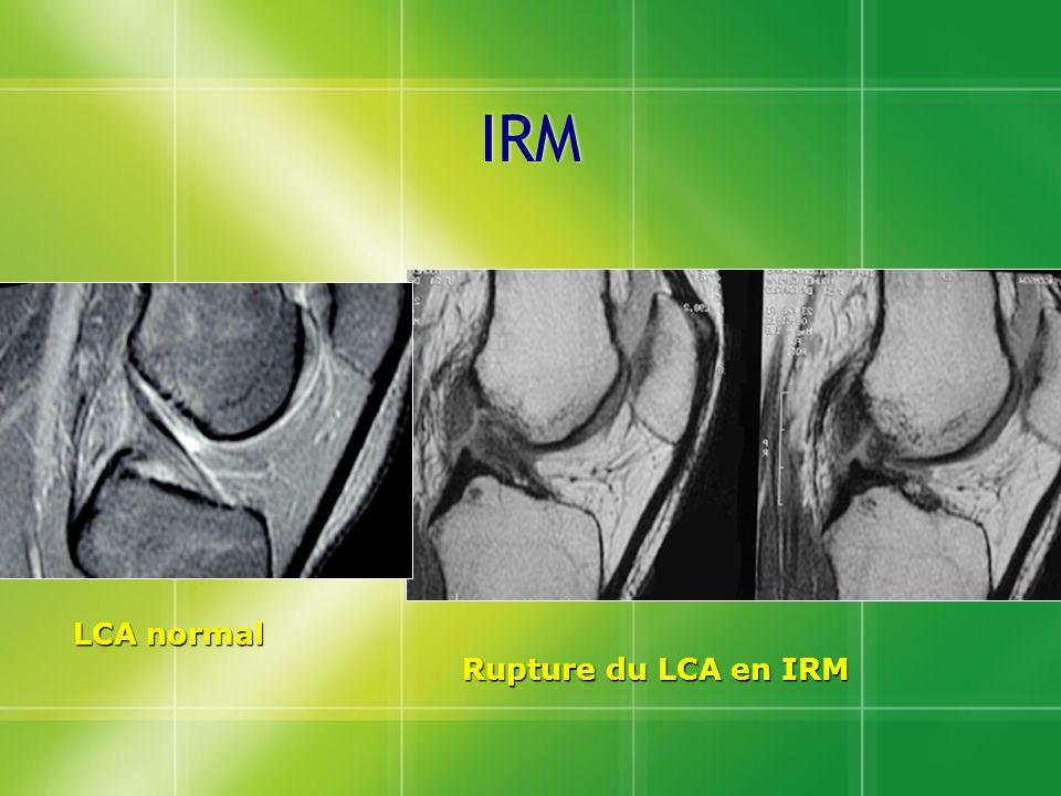 IRM Rupture du LCA en IRM LCA normal