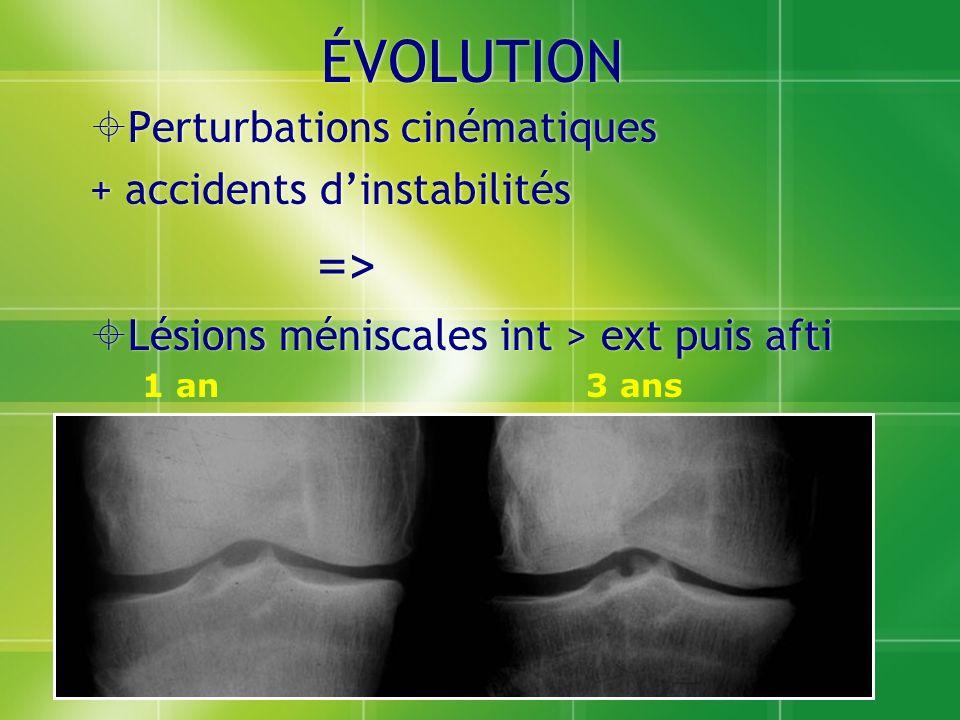 ÉVOLUTION Perturbations cinématiques + accidents dinstabilités => Lésions méniscales int > ext puis afti Perturbations cinématiques + accidents dinsta