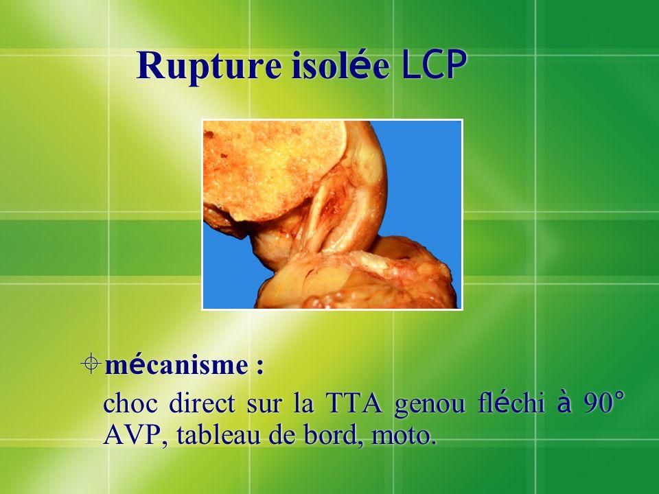 Rupture isol é e LCP m é canisme : choc direct sur la TTA genou fl é chi à 90° AVP, tableau de bord, moto. m é canisme : choc direct sur la TTA genou