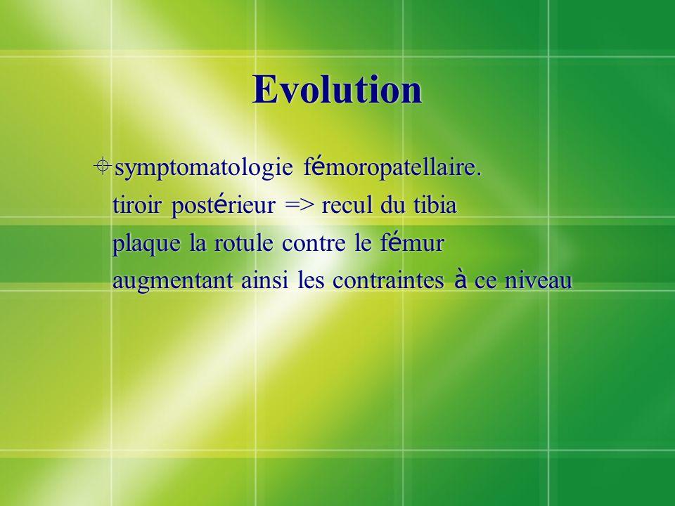 Evolution symptomatologie f é moropatellaire. tiroir post é rieur => recul du tibia plaque la rotule contre le f é mur augmentant ainsi les contrainte