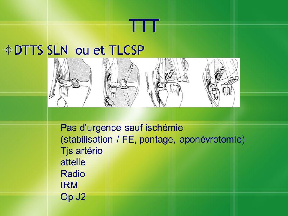 TTT DTTS SLN ou et TLCSP Pas durgence sauf ischémie (stabilisation / FE, pontage, aponévrotomie) Tjs artério attelle Radio IRM Op J2