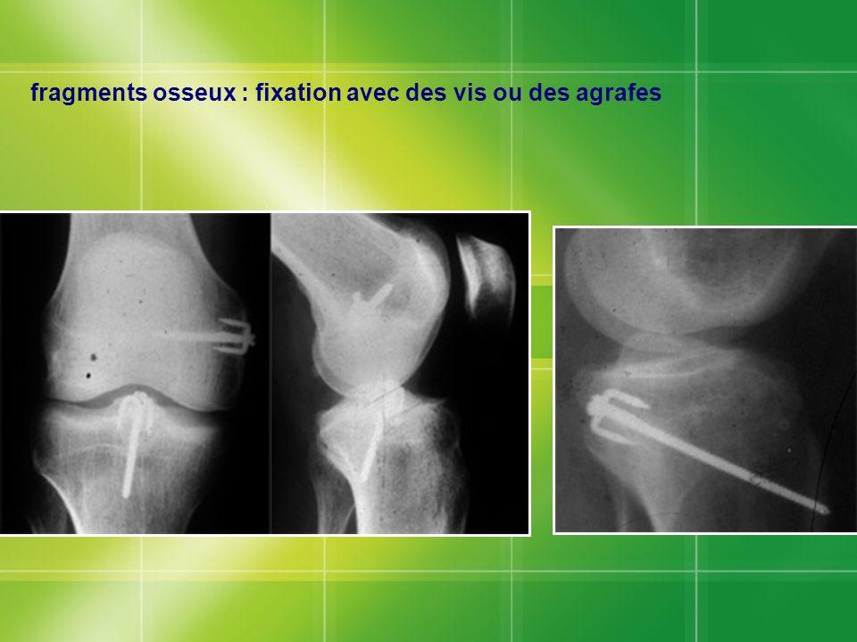 fragments osseux : fixation avec des vis ou des agrafes