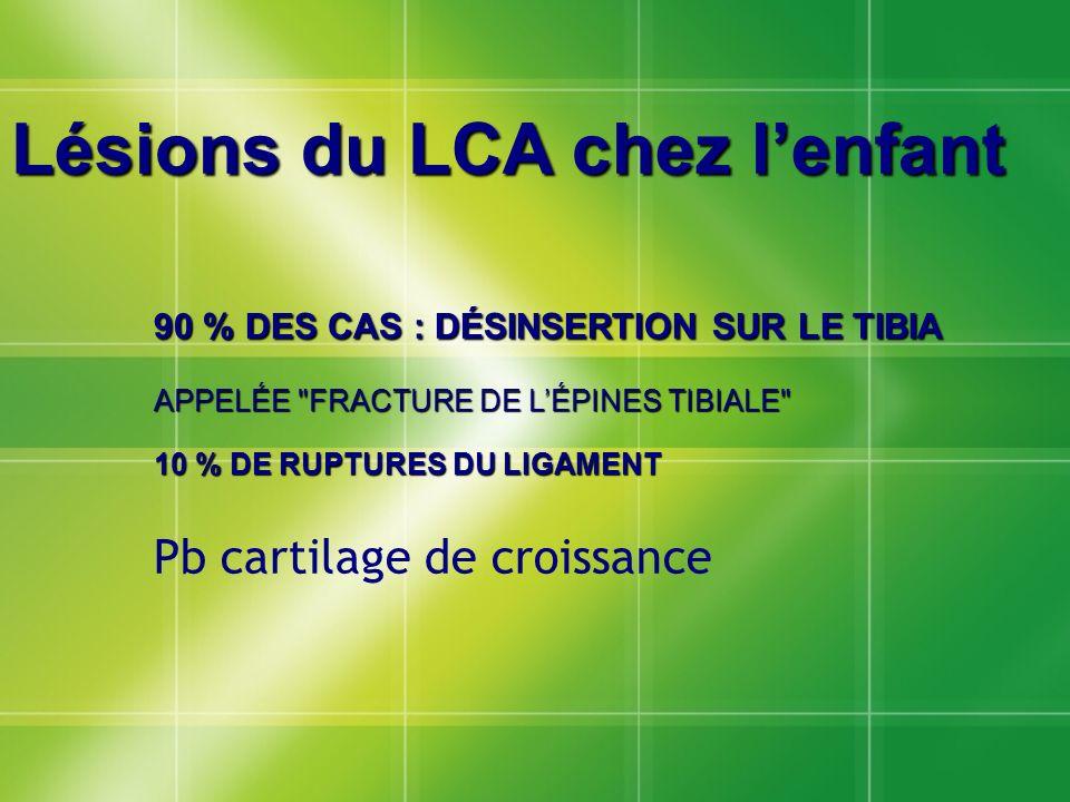 Lésions du LCA chez lenfant 90 % DES CAS : DÉSINSERTION SUR LE TIBIA APPELÉE