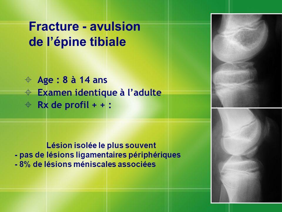 Age : 8 à 14 ans Examen identique à ladulte Rx de profil + + : Age : 8 à 14 ans Examen identique à ladulte Rx de profil + + : Fracture - avulsion de l