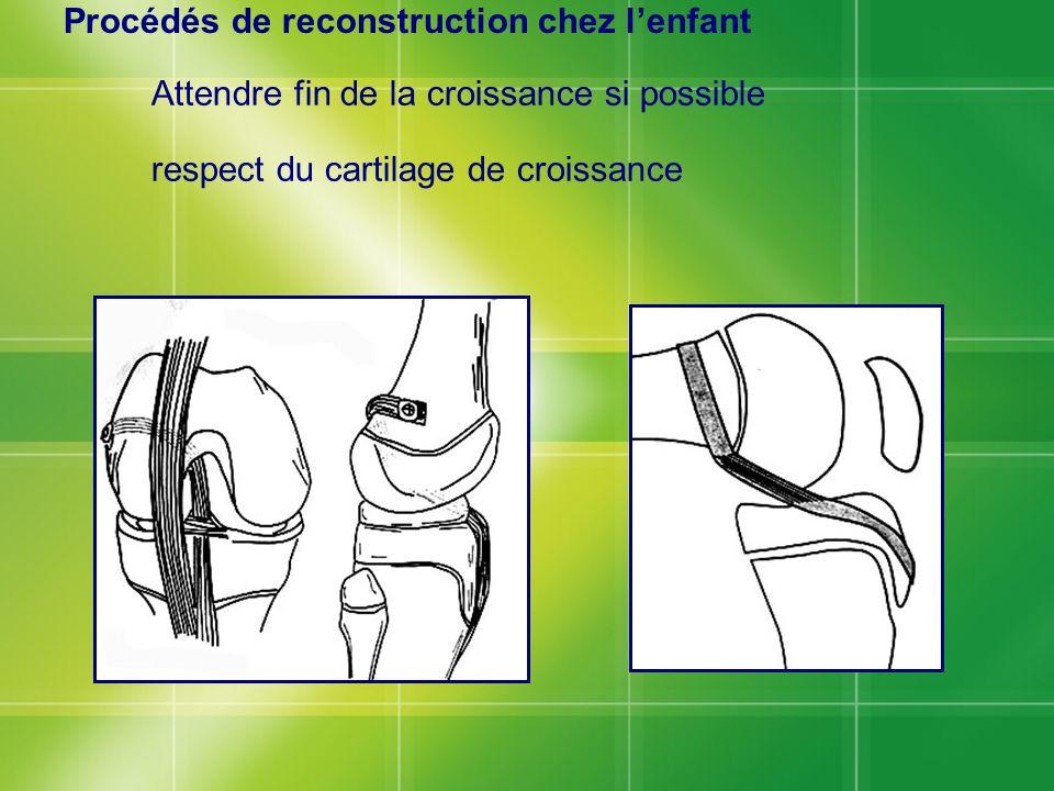 Procédés de reconstruction chez lenfant Attendre fin de la croissance si possible respect du cartilage de croissance