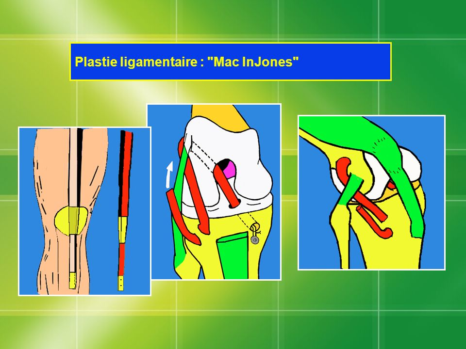 Plastie ligamentaire :