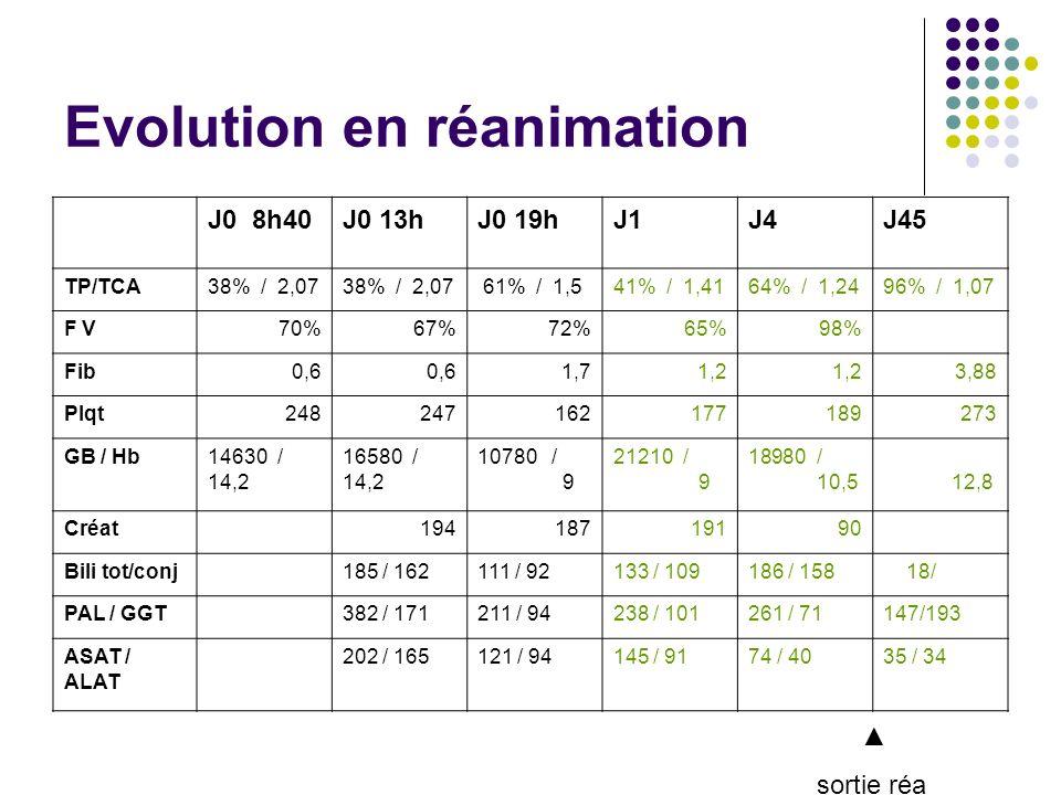 Evolution en réanimation J0 8h40J0 13hJ0 19hJ1J4J45 TP/TCA38% / 2,07 61% / 1,541% / 1,4164% / 1,2496% / 1,07 F V70%67%72%65%98% Fib0,6 1,71,2 3,88 Plqt248247162177189273 GB / Hb14630 / 14,2 16580 / 14,2 10780 / 9 21210 / 9 18980 / 10,5 12,8 Créat 19418719190 Bili tot/conj 185 / 162111 / 92133 / 109186 / 158 18/ PAL / GGT 382 / 171211 / 94238 / 101261 / 71147/193 ASAT / ALAT 202 / 165121 / 94145 / 9174 / 4035 / 34 sortie réa