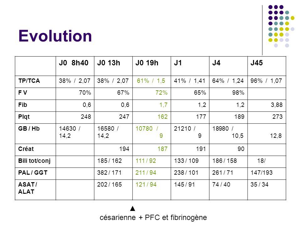 Evolution J0 8h40J0 13hJ0 19hJ1J4J45 TP/TCA38% / 2,07 61% / 1,541% / 1,4164% / 1,2496% / 1,07 F V70%67%72%65%98% Fib0,6 1,71,2 3,88 Plqt248247162177189273 GB / Hb14630 / 14,2 16580 / 14,2 10780 / 9 21210 / 9 18980 / 10,5 12,8 Créat 19418719190 Bili tot/conj 185 / 162111 / 92133 / 109186 / 158 18/ PAL / GGT 382 / 171211 / 94238 / 101261 / 71147/193 ASAT / ALAT 202 / 165121 / 94145 / 9174 / 4035 / 34 césarienne + PFC et fibrinogène
