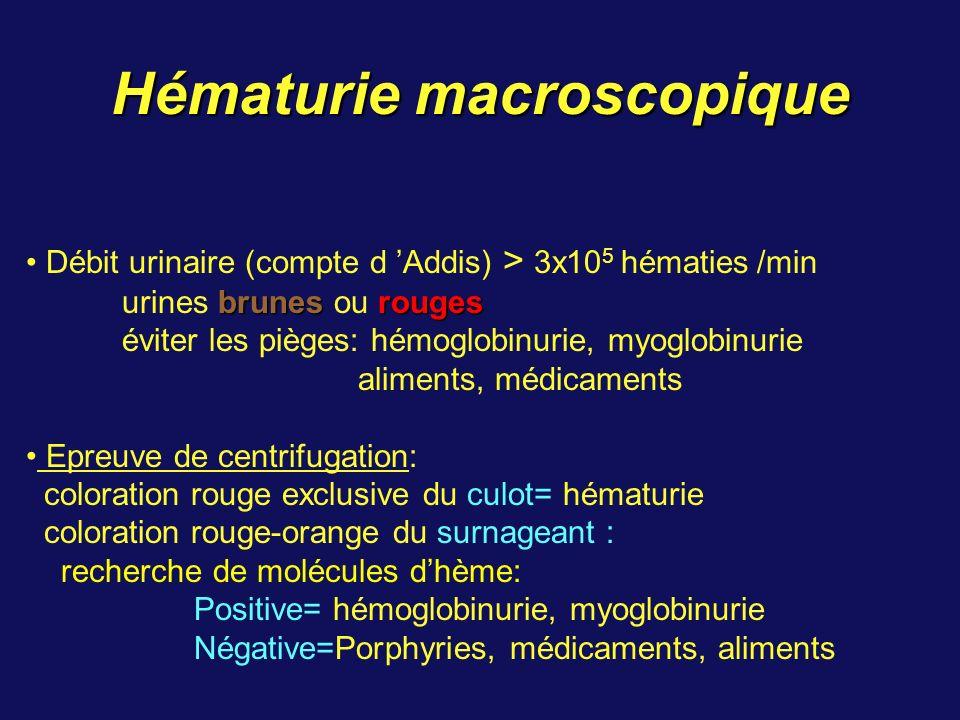 Hématurie macroscopique Débit urinaire (compte d Addis) > 3x10 5 hématies /min brunesrouges urines brunes ou rouges éviter les pièges: hémoglobinurie, myoglobinurie aliments, médicaments Epreuve de centrifugation: coloration rouge exclusive du culot= hématurie coloration rouge-orange du surnageant : recherche de molécules dhème: Positive= hémoglobinurie, myoglobinurie Négative=Porphyries, médicaments, aliments