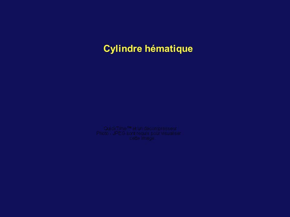 Cylindre hématique