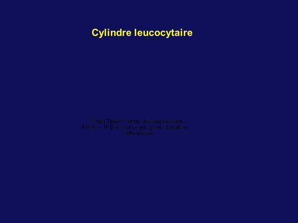 Cylindre leucocytaire