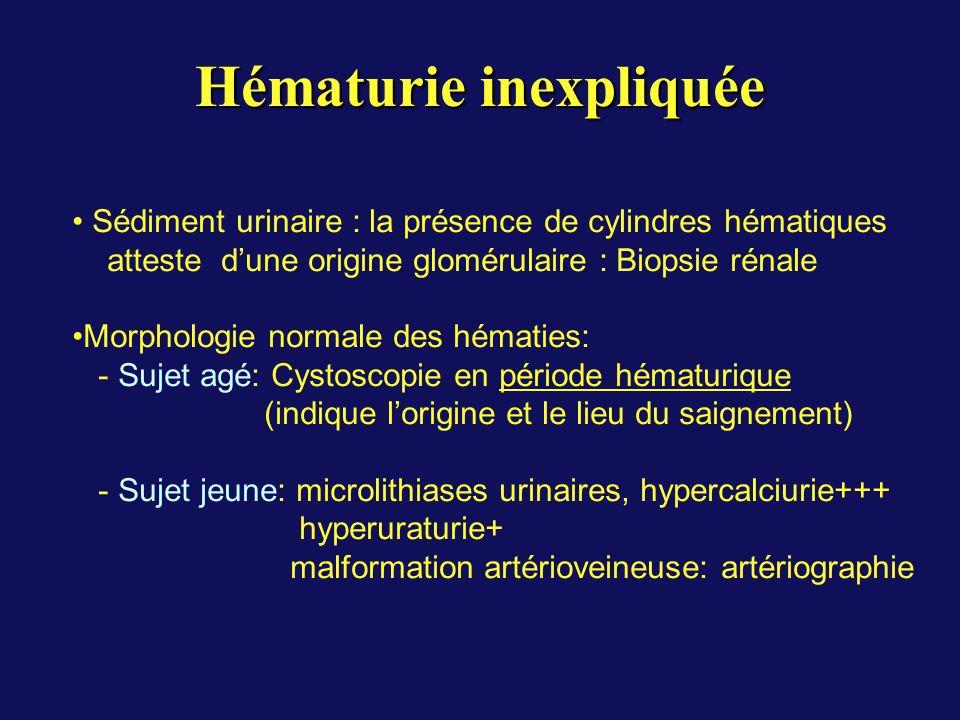 Hématurie inexpliquée Sédiment urinaire : la présence de cylindres hématiques atteste dune origine glomérulaire : Biopsie rénale Morphologie normale des hématies: - Sujet agé: Cystoscopie en période hématurique (indique lorigine et le lieu du saignement) - Sujet jeune: microlithiases urinaires, hypercalciurie+++ hyperuraturie+ malformation artérioveineuse: artériographie