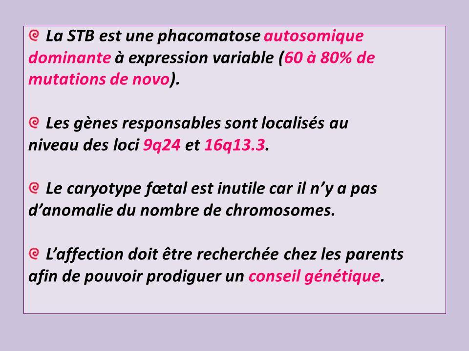 La STB est une phacomatose autosomique dominante à expression variable (60 à 80% de mutations de novo). Les gènes responsables sont localisés au nivea