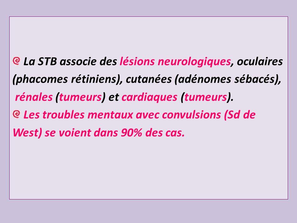 La STB associe des lésions neurologiques, oculaires (phacomes rétiniens), cutanées (adénomes sébacés), rénales (tumeurs) et cardiaques (tumeurs). Les