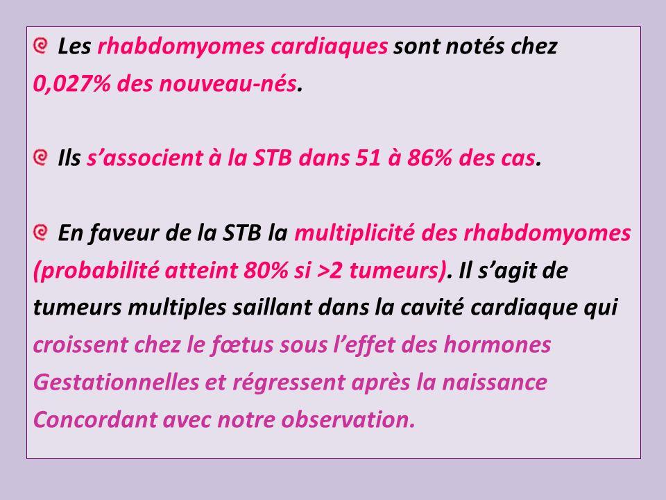 Les rhabdomyomes cardiaques sont notés chez 0,027% des nouveau-nés. Ils sassocient à la STB dans 51 à 86% des cas. En faveur de la STB la multiplicité