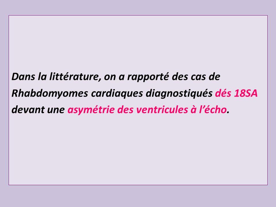 Dans la littérature, on a rapporté des cas de Rhabdomyomes cardiaques diagnostiqués dés 18SA devant une asymétrie des ventricules à lécho.
