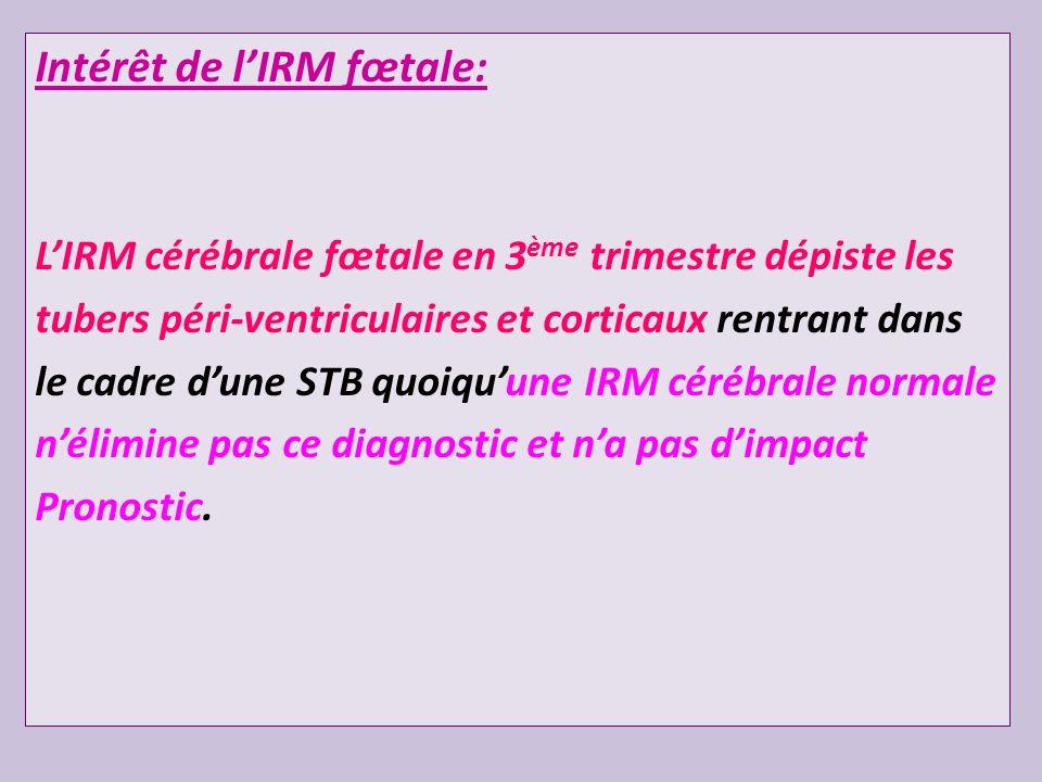 Intérêt de lIRM fœtale: LIRM cérébrale fœtale en 3 ème trimestre dépiste les tubers péri-ventriculaires et corticaux rentrant dans le cadre dune STB q