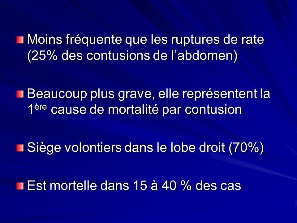 Moins fréquente que les ruptures de rate (25% des contusions de labdomen) Beaucoup plus grave, elle représentent la 1 ère cause de mortalité par contu