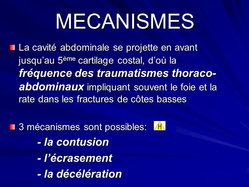 MECANISMES La cavité abdominale se projette en avant jusquau 5 ème cartilage costal, doù la fréquence des traumatismes thoraco- abdominaux impliquant