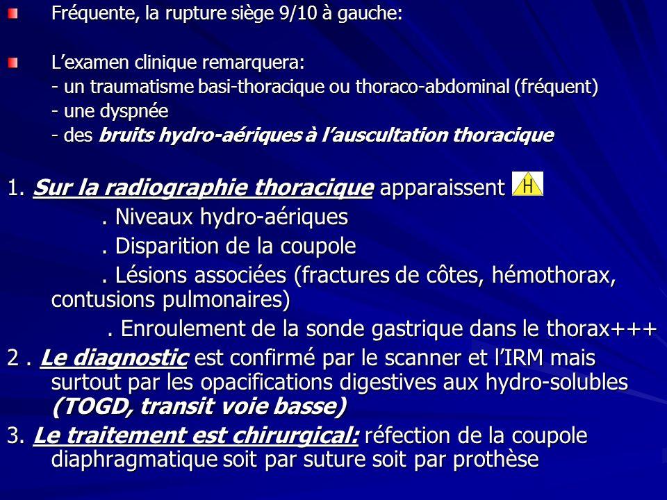 Fréquente, la rupture siège 9/10 à gauche: Lexamen clinique remarquera: - un traumatisme basi-thoracique ou thoraco-abdominal (fréquent) - une dyspnée