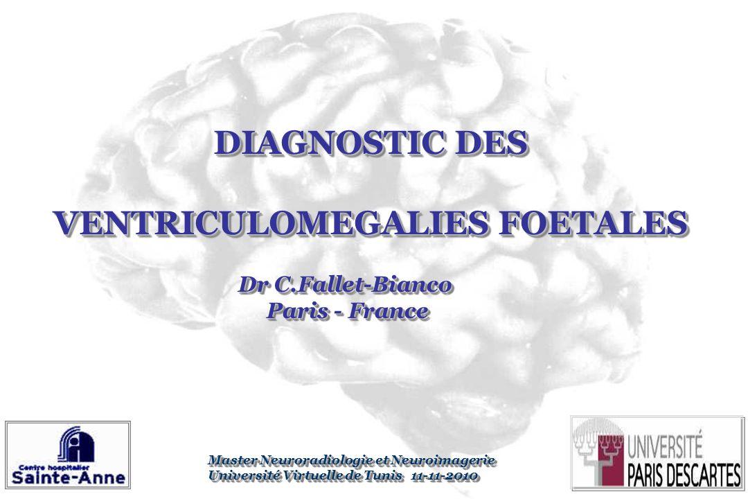DIAGNOSTIC DES VENTRICULOMEGALIES FOETALES DIAGNOSTIC DES VENTRICULOMEGALIES FOETALES Dr C.Fallet-Bianco Paris - France Paris - France Dr C.Fallet-Bia