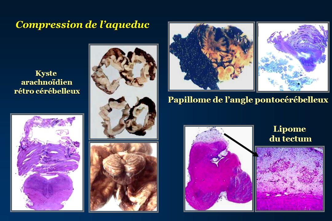 Kystearachnoïdien rétro cérébelleux Compression de laqueduc Papillome de langle pontocérébelleux Lipome du tectum
