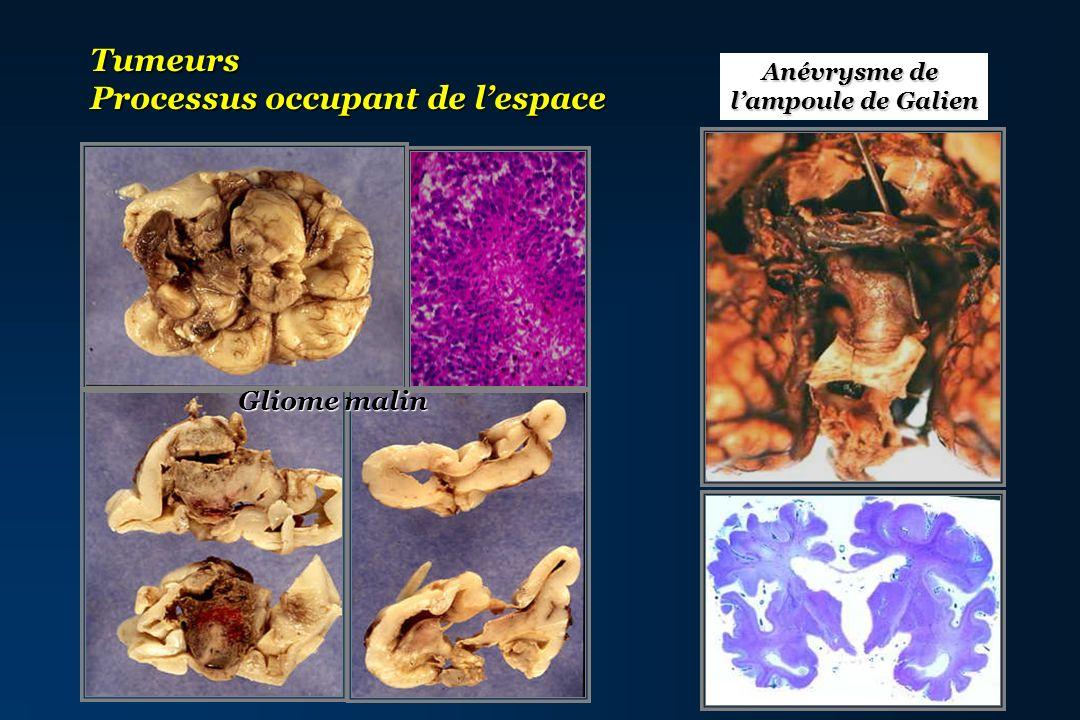Tumeurs Processus occupant de lespace Gliome malin Anévrysme de lampoule de Galien