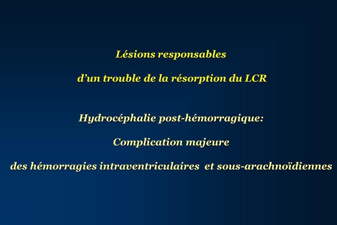 Lésions responsables dun trouble de la résorption du LCR Hydrocéphalie post-hémorragique: Complication majeure des hémorragies intraventriculaires et