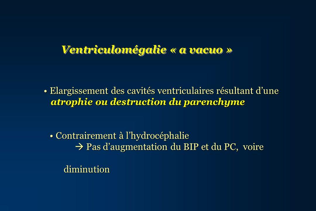 Ventriculomégalie « a vacuo » Elargissement des cavités ventriculaires résultant dune Elargissement des cavités ventriculaires résultant dune atrophie