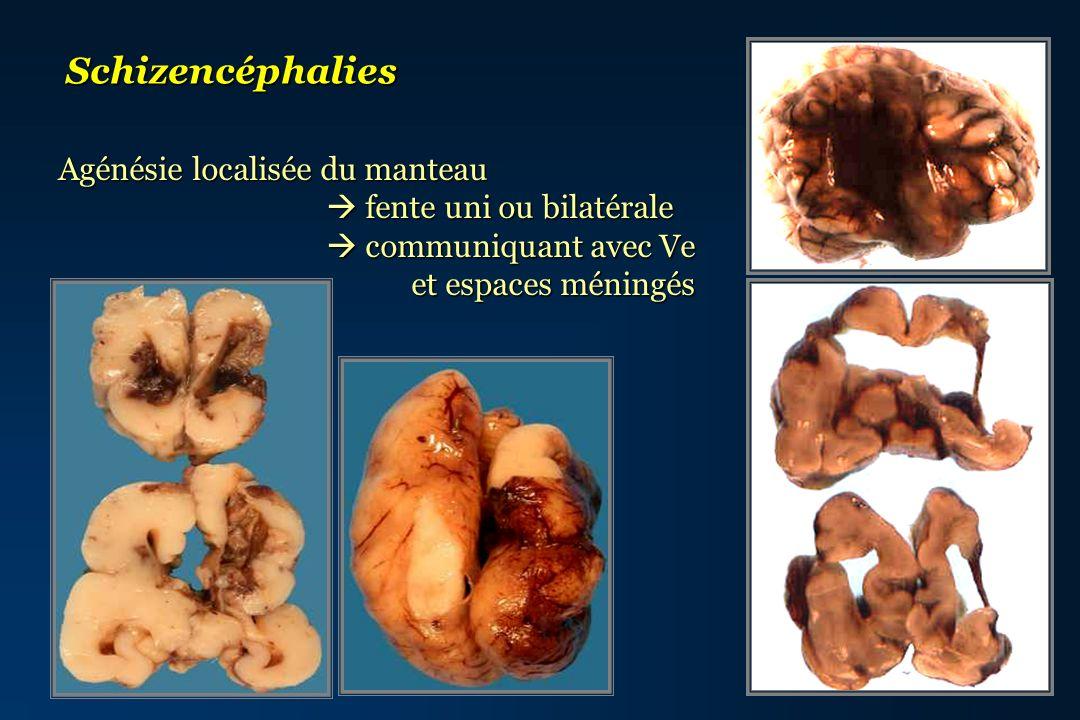 Schizencéphalies Agénésie localisée du manteau fente uni ou bilatérale fente uni ou bilatérale communiquant avec Ve communiquant avec Ve et espaces mé