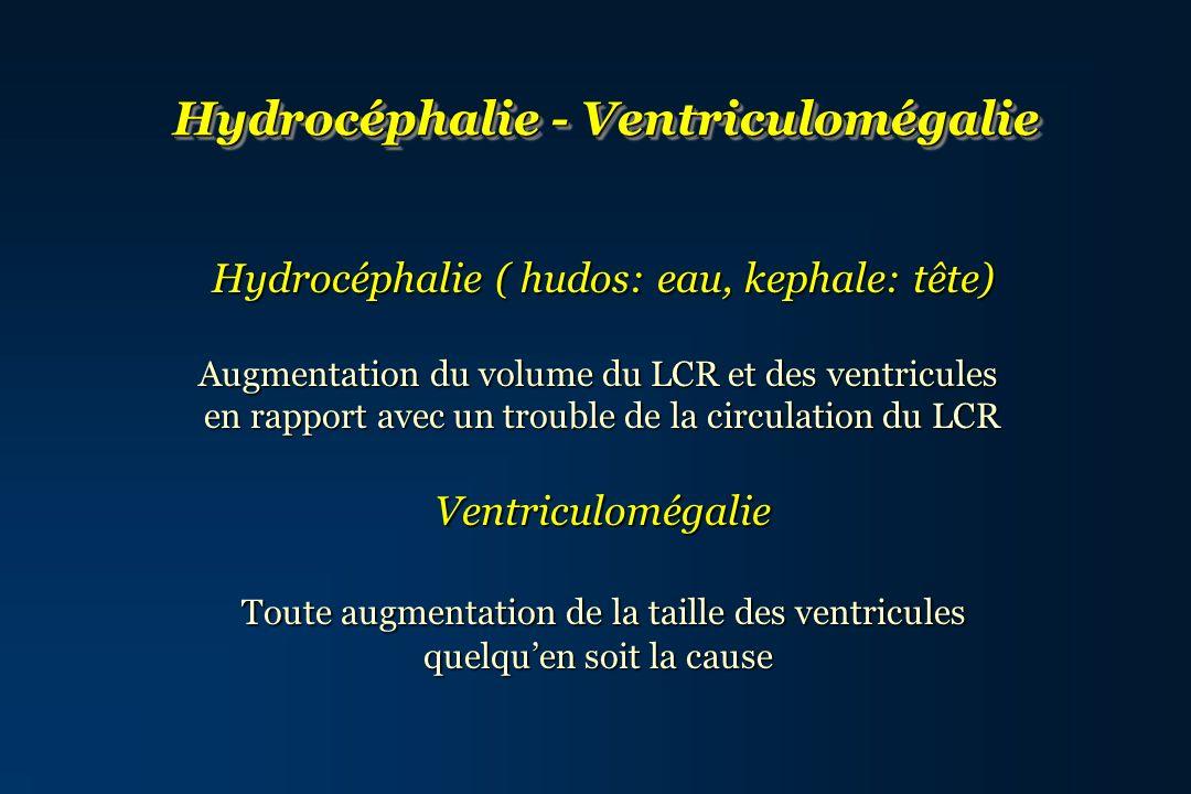 Hydrocéphalie - Ventriculomégalie Hydrocéphalie ( hudos: eau, kephale: tête) Hydrocéphalie ( hudos: eau, kephale: tête) Augmentation du volume du LCR