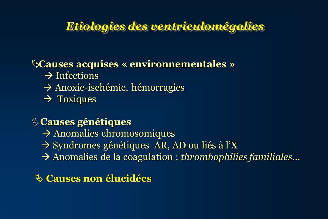 Etiologies des ventriculomégalies Causes acquises « environnementales » Causes acquises « environnementales » Infections Infections Anoxie-ischémie, h